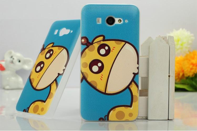 เคสซิลิโคน Xiaomi MI2 และ Xiaomi MI2S XM2S-S001 - Omega Case 13