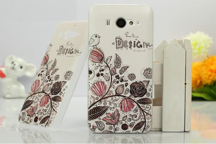 เคสซิลิโคน Xiaomi MI2 และ Xiaomi MI2S XM2S-S001 - Omega Case 4