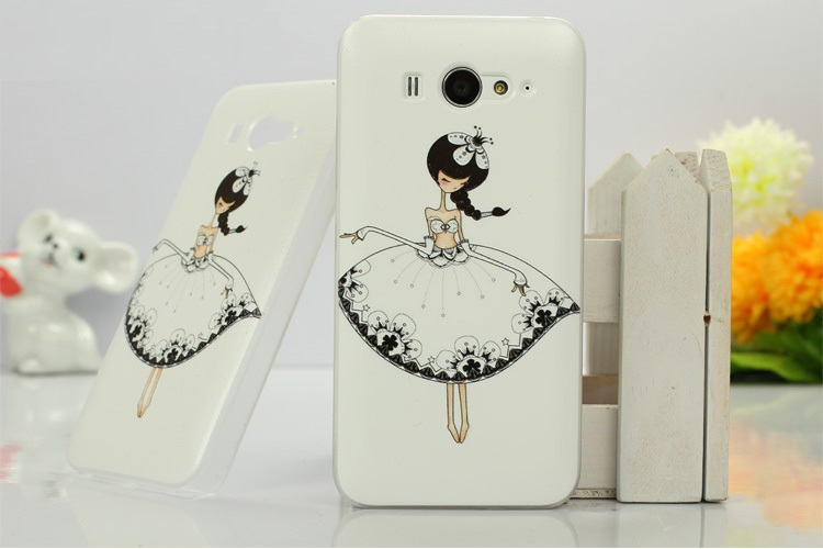 เคสซิลิโคน Xiaomi MI2 และ Xiaomi MI2S XM2S-S001 - Omega Case 5